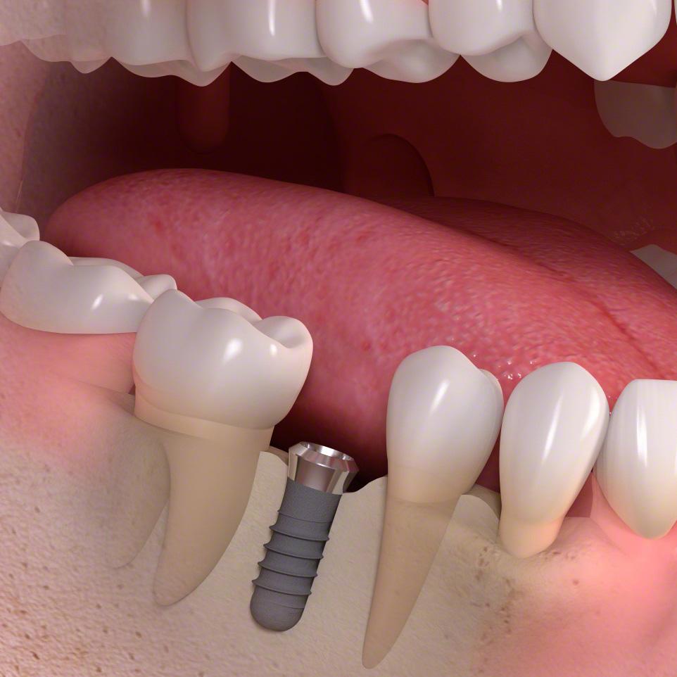 Implantologie München