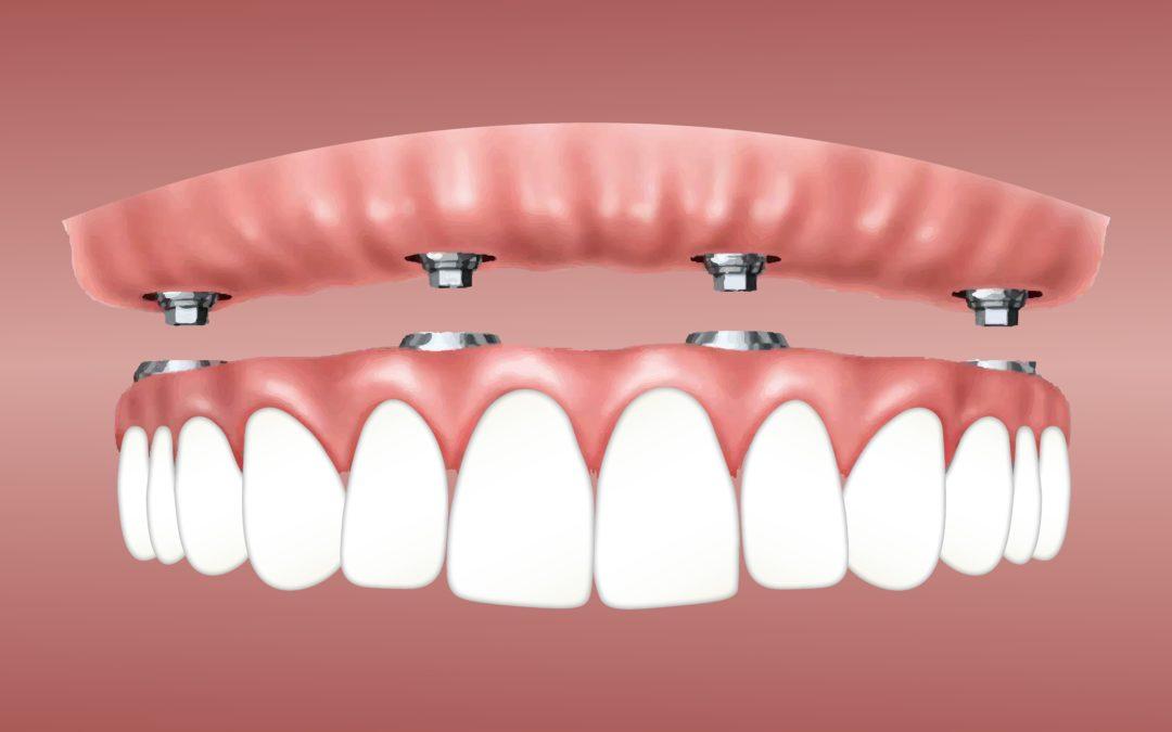 Unbezahnter Kiefer und Implantate