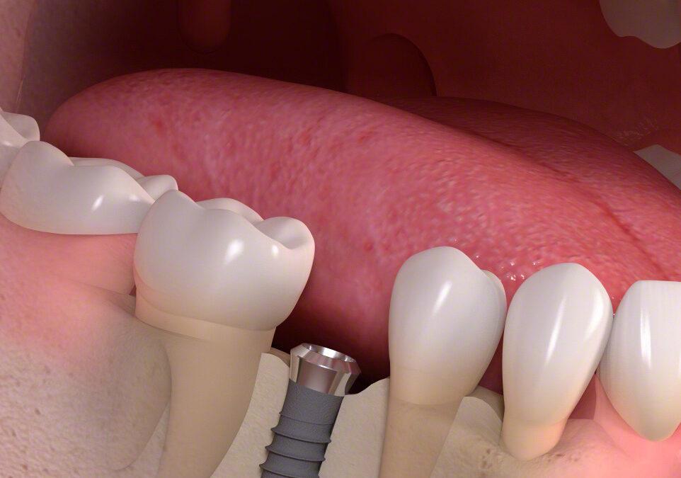 Wie wird ein Implantat gesetzt?