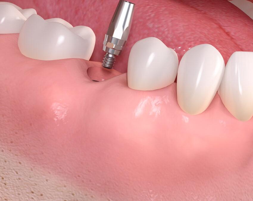 Wie viel kostet ein Zahnimplantat?