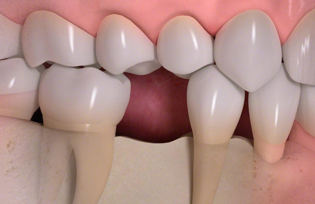 Zahnimplantat oder Brücke? Was ist besser?